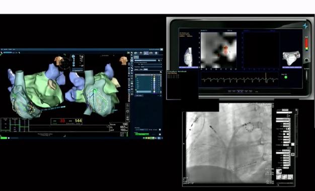 Ablacion de FA persistente con sistema de mapeo topera y aislamiento de venas pulmonares con catéter PVAC
