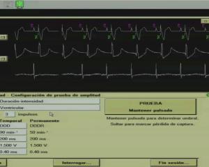 Programación de marcapasos: Determinación de umbrales