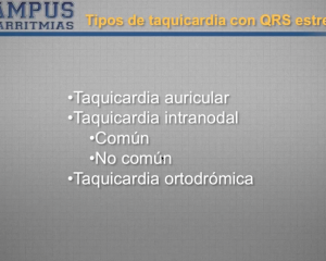 Diagnóstico diferencial de taquicardias de QRS estrecho