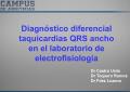 Diagnóstico diferencial de taquicardias de QRS ancho