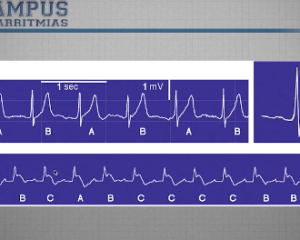 Alternancia de la onda T, Tilt test y Holter