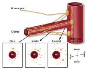 Ablación de arterias renales. Estado del arte