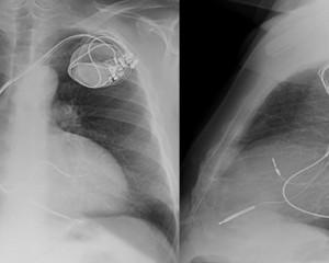 RSC Técnica de implante III