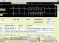 Curso de DAI: ATP durante la carga (Anti Tachycardia Pacing)