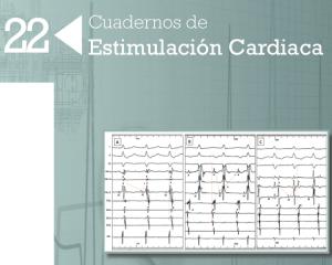 YA DISPONIBLE! Número 22 de Cuadernos de estimulación cardiaca