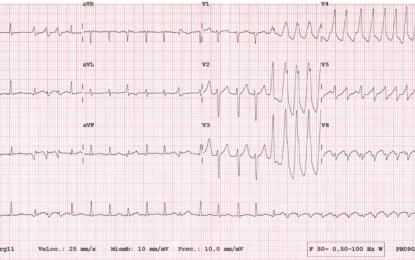Ponte a Prueba: Paciente con taquicardia de QRS ancho.