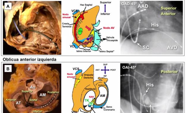 ANATOMÍA CARDÍACA. Bases anatómicas y estructurales para electrofisiólogos (parte 1)