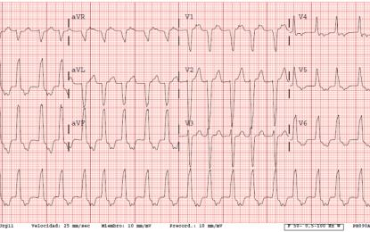 Caso clínico: Recuperación de función cardiaca tras ablación del foco arritmogenico