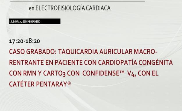 Curso de Navegadores:TA macro-rentrante en paciente con cardiopatía congenita con RMN y Carto® 3 con Confidense™ V4 con el catéter Pentaray®